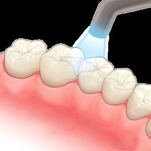 治療 歯 後 痛い の
